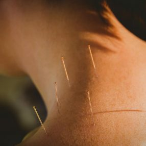 Na co pomaga akupunktura